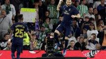 """La sinceridad de Karim Benzema: """"Me gustaría volver a Lyon"""""""